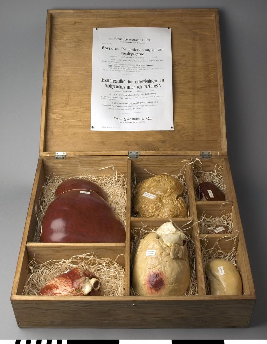 """Organmodell av friskt hjärta för undervisning. Tillverkad av gips och realistiskt målad. Försedd med en liten lapp av papper med text: """"Friskt hjärta"""". Del av en samling organ i en trälåda. Originalet är troligen tillverkat under 1900-talets början. En kopierad broschyr, som nu är fastsatt i organlådans lock, är tryckt 1902. Frans Svanström & C:0, N:0 1 Myntgatan i Stockholm, sålde dessa och liknande varor. En hel sats kostade 25 kr i """"kartong""""."""
