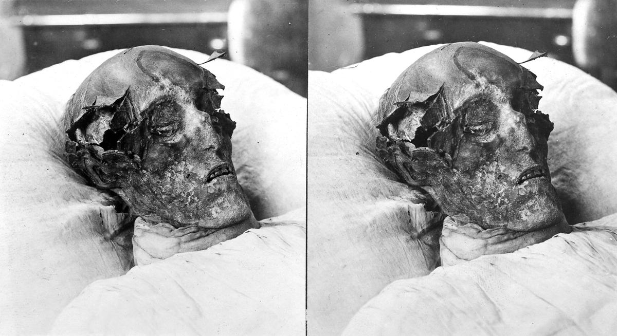 Karl XII:s mumifierade lik i papier maché.