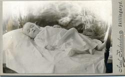 Kabinettsfotografi: Greta Hilma Louise Grant på dödsbädden.
